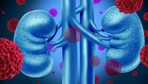 Bệnh ung thư có nên uống Sữa non Alpha Lipid Lifeline hay không