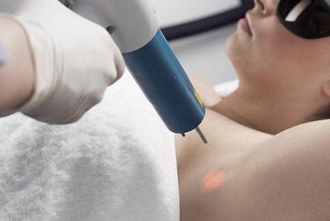 Laser điều trị hôi nách